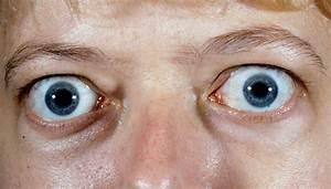 Thyroid eye disease (TED) – BOPSS