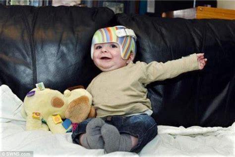 Babies Born with Flat Head