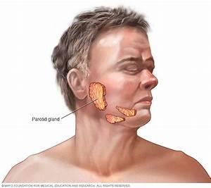 Parotid Tumors Disease Reference Guide