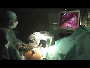 Tete Thermostatique Connectée : 1 re sleeve gastrectomie en france avec une cam ra ~ Melissatoandfro.com Idées de Décoration