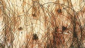Pubic Lice Infestation (Crabs): Symptoms, Treatment, Causes