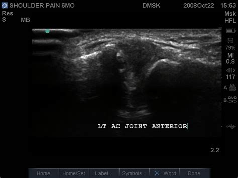 Shoulder Ultrasound Pathology