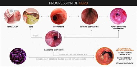 gerd ascentx medical