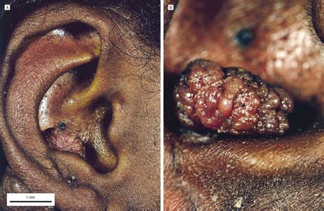 carney complex unusual skin findings  recurrent