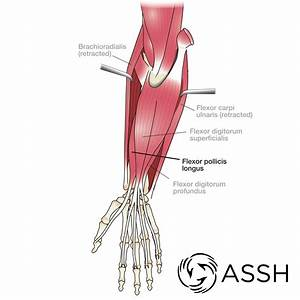 Body Anatomy  Upper Extremity Muscles