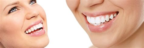 cosmetic dentist brandon ms cosmetic dental procedures