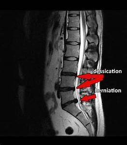 prolapsed disc in neck