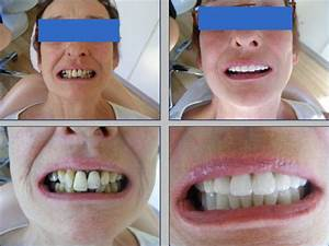 Before & After Photos | Elit Dental Clinic | Kusadasi Dentist