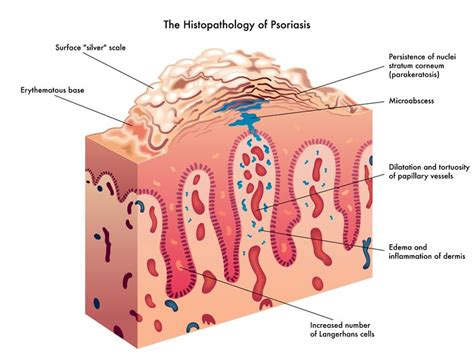 Psoriasis, diet and Natural Treatment Options