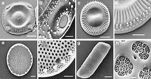6 Transmission Electron Microscopic Images Of Marine