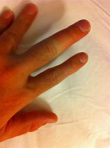 Vol State 500K: Swollen Finger - Yellow Jacket/Bee Sting ...
