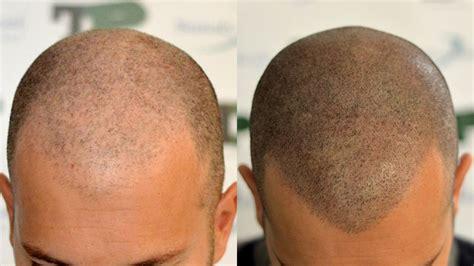 Hair Touch Up Procedure | Micropigmentation Stylist