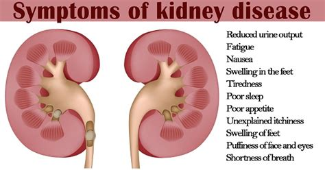 Kidney Diseases Sign And Symptoms You Must Know. Best Software For Flowcharts. Data Analytics Strategy Bmw Repair Manual Pdf. Cumberland Diagnostic And Treatment Center. Texas Christian School Cna Classes Lincoln Ne. Hormone Replacement Therapy Tampa. Eligibility For Roth Ira Repeat Dui Offenders. Telephone Systems For Small Businesses In South Africa. Huntington National Bank Online