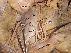 Dissection Of Posterior Abdominal Wall Showing The Major