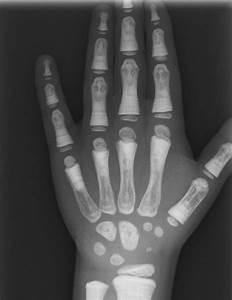 Radiological  U201cbone Within A Bone U201d Appearance With