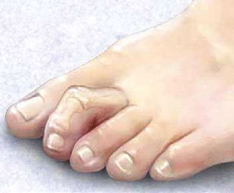 Hammertoe And Mallet Toe Symptoms, Causes, Diagnosis And. Pencil Drawn Banners. Line Murals. Company Logo Signs. Stickers Near Me. Painted Stickers. Night Watch Banners. Leaf Signs. Thanksgiving Theme Banners