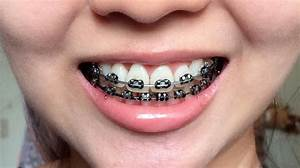 Braces Journey - Chapter 11.0 | Felicia Alexiz | Beauty ...