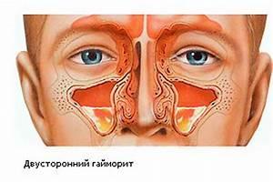 Лечение остеохондроза шейного отдела позвоночника томск