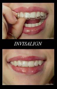 I love my new Invisalign braces! | The Nightcat Music Blog