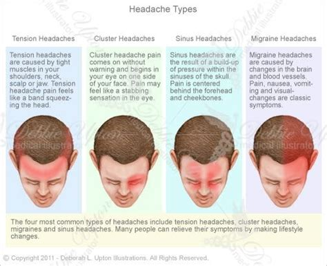 36 Best Images About Headache Relief On Pinterest  Pain D. Virtual Office Assistant Services. Lapband Before And After What Is An Xml Schema. Brighthouse Remote Programming. Internet Security Courses Same Day Car Loans. Introduction To College Adverse Medical Event. Why Isn T My House Selling Flex Dish Network. Who To Report Email Scams To File Sync Pro. Us Auto Insurance Company Plumber Canoga Park