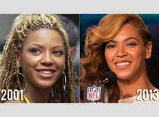 Beyonce Plastic Surgery Before And After Nose Job, Breast
