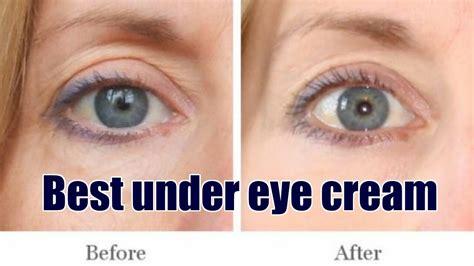 Best Under Eye CreamHow To Reduce Puffy Eyes YouTube
