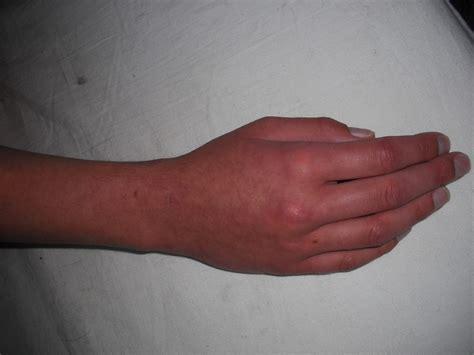 Feb2012 Diagnose Morbus Sudeck   wer kennt sich aus