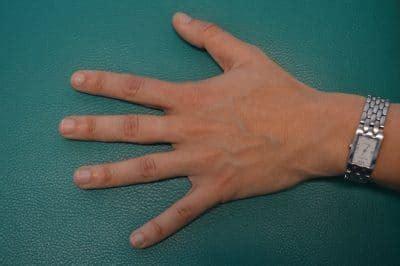 dedo em gatilho polegar indicador ou medio terapia