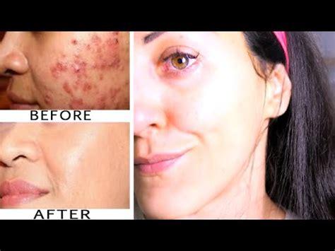 eliminare le macchie dal viso acne segni brufoli