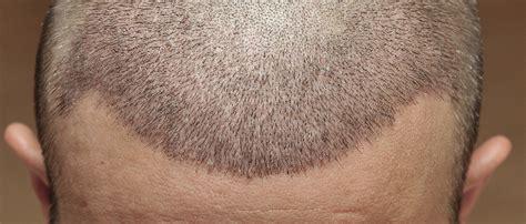 nach einer haartransplantation