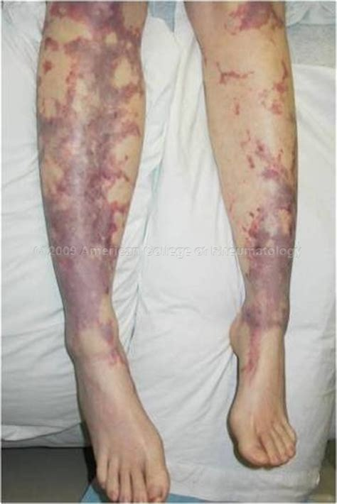 cryoglobulinemia  symptoms treatment cryoglobulinemia
