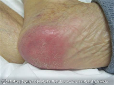 Bed Sores Stage 1 by Warning Images Of Pressure Sores Graphic