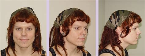 dr chettawuts facial feminization surgery gallery