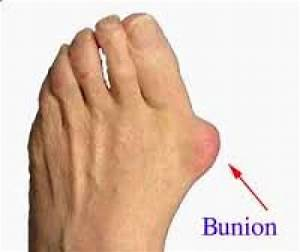 Bunions Causes And Treatment