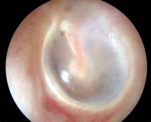 Ear Tubes | Ear, Nose, Throat & Allergy Specialist