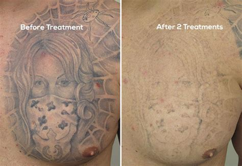 results  laser tattoo removal treatments
