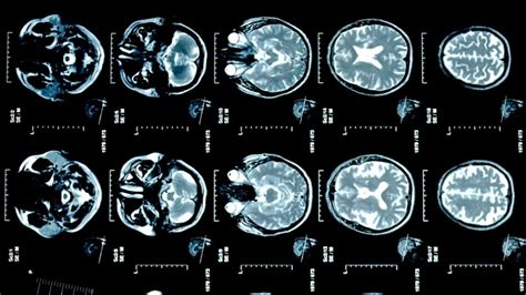 female brain recovers  quickly  alcoholism