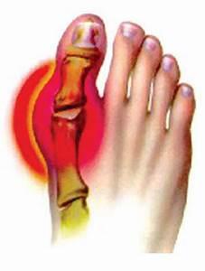 Лечение аутоиммунного артрита народными средствами