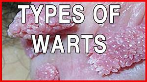 Types Of Warts Genital Warts  Information  Symptoms And