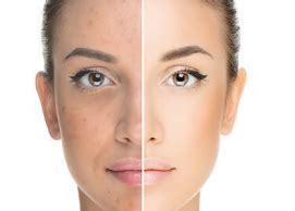 acne treatment reviews clears  acne