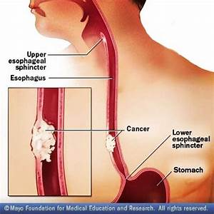 A Muscular Ring Seals The Esophagus From The Stomach  This