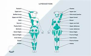 Back Liposuction Areas Diagram