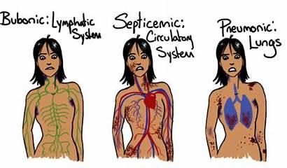 Plague Types Death Symptoms Septicemic Different Bubonic