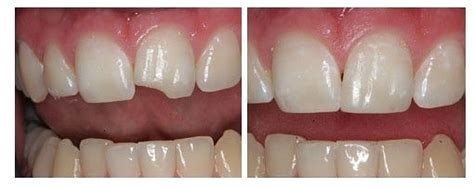 chipped front tooth partners  dental health