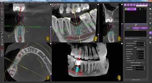 10 Mm Implant Installation By Using A Surgical Guide