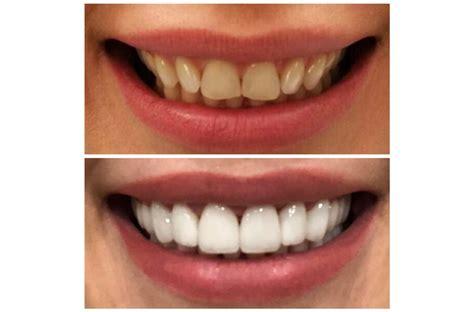 Zobu venīri & zobu protezēšana - stomatoloģijas klīnika Rīgā