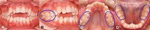 Symptome Dent De Sagesse : bruxisme et grincement de dents usure dentaire ~ Maxctalentgroup.com Avis de Voitures