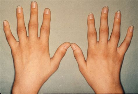 Health From Trusted Sources Rheumatoid Arthritis. Home Theater Installation Houston Tx. Freelance Magento Developer Baking Soda Flu. American College Of Acupuncture. Old Republic Home Protection. Carpet Cleaning Prescott Az Types Of Degree. Pay Day Loans St Louis Persistent Chest Cough. Occupational Health Degrees Illinois S Corp. Lawyers In Rockville Md Kennesaw Pest Control