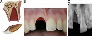 Management Of Dental Trauma In A Primary Care Setting