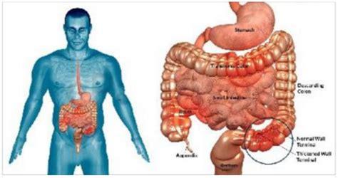 alimentazione morbo di crohn morbo di crohn scoperta la causa ed 232 qualcosa a cui